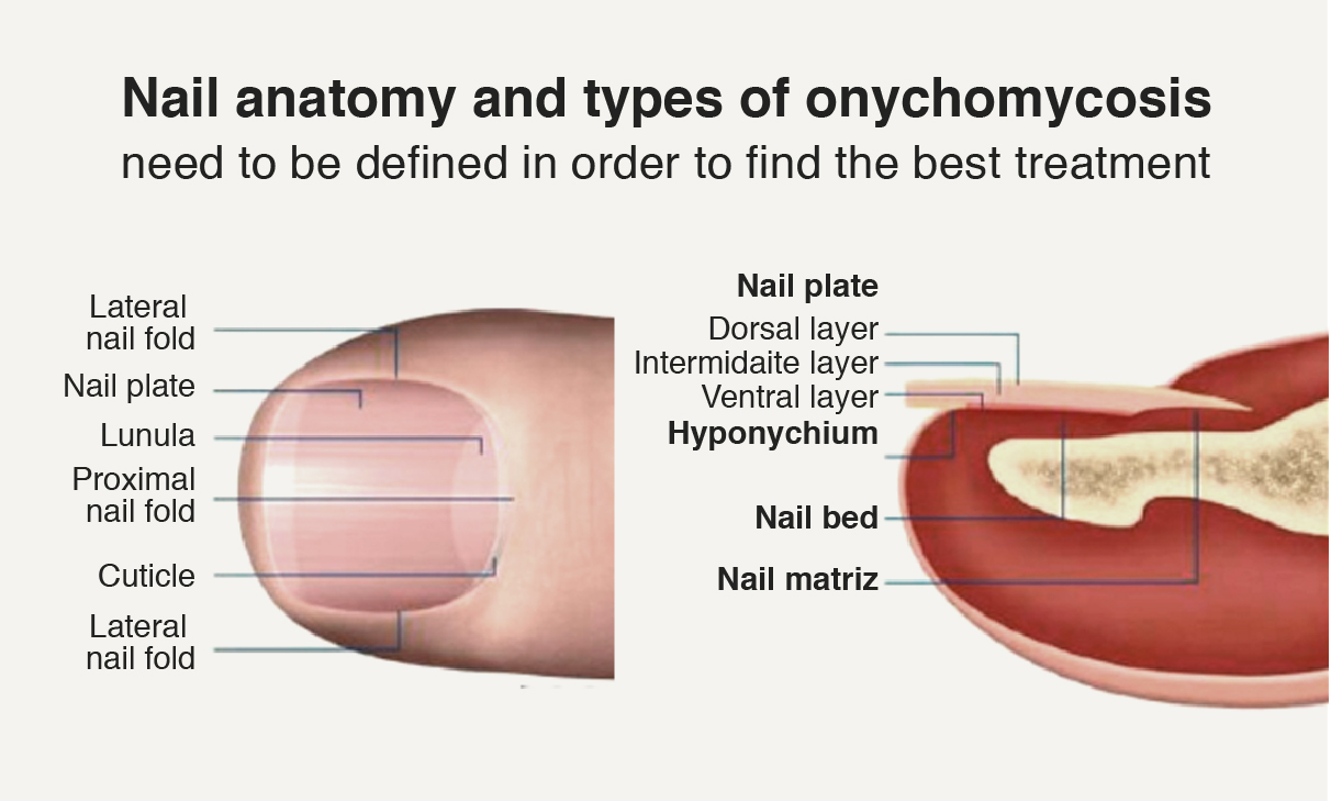Onychomycosis | Tratamientos | Lemel Medical Spa