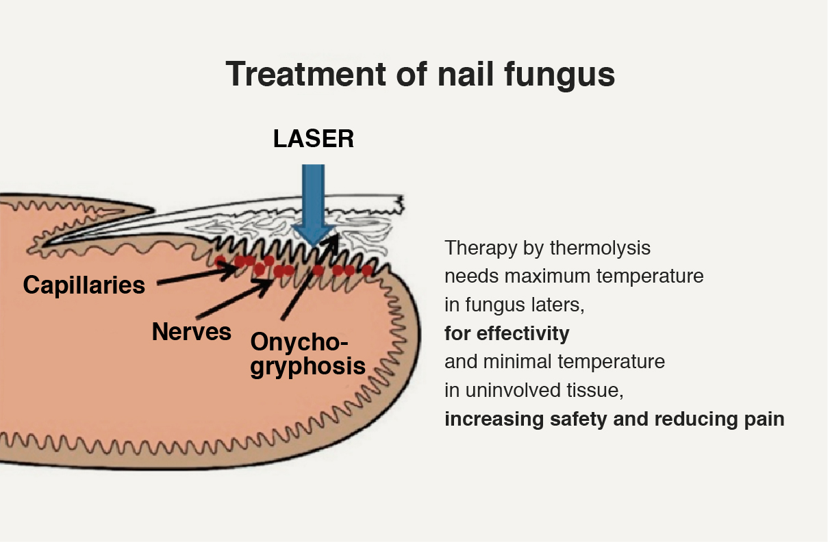 Diagram Of Toe Nails - Find Wiring Diagram •